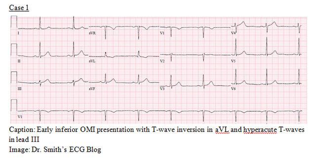 EP Monthly EKG case 1