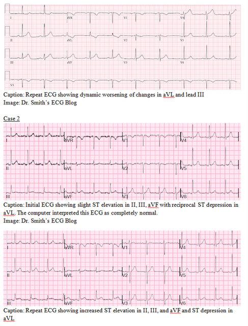 EP Monthly EKG case 2