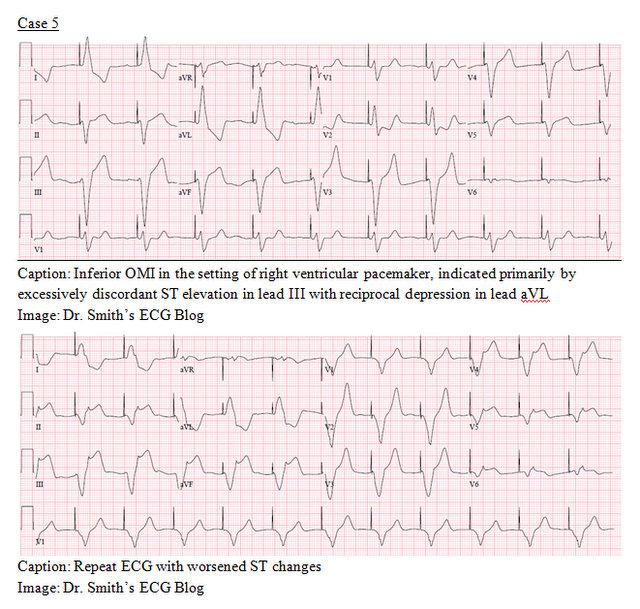 EP Monthly EKG case 5