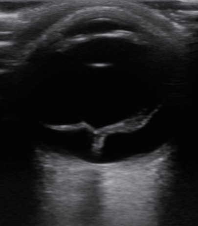 Painless Vision Loss Image 1 - RD