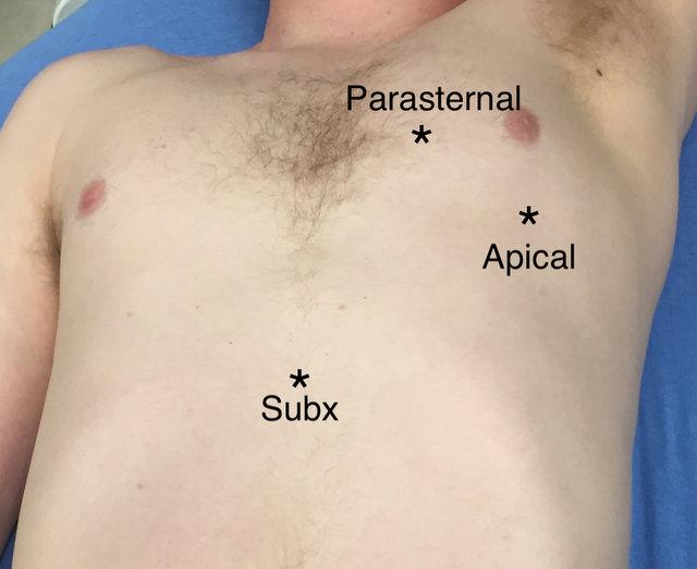 Ultrasound Figure 1