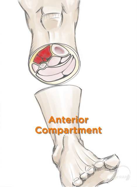 Lower leg anterior compartment_DMason-wm