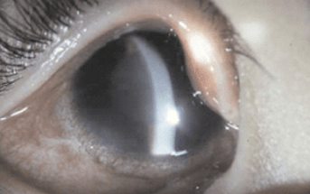 Looking into intraocular eye pressure