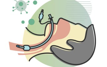 A Brief History of the Endotracheal Tube