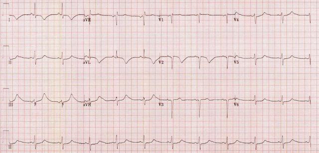 cerebral EKG.
