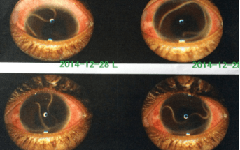 EM Quiz: Eye pain and irritation
