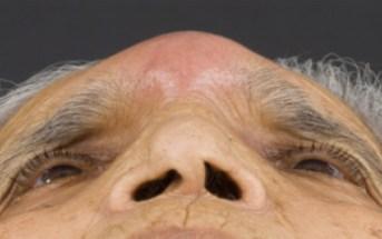 Pott's Puffy Tumor in an elderly woman
