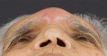 pott's puffy tumor closeup