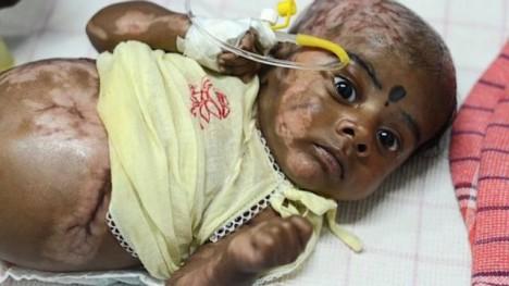Rahulovo tělo prý vylučuje vznětlivé plyny.