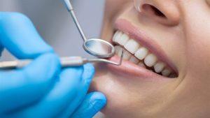 Víte, které potraviny ničí naše zuby?