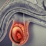 Narodil se první primát za využití techniky zmrazených tkání varlat