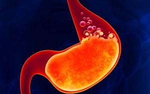 Léky na pálení žáhy prý zvyšují riziko alergií
