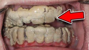 Co by se stalo, kdybychom si přestali čistit zuby?