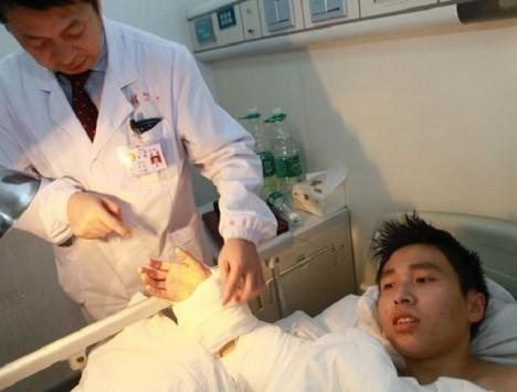 Po měsíci pak lékaři přišili Číňanovi ruku zpět k pravému předloktí.