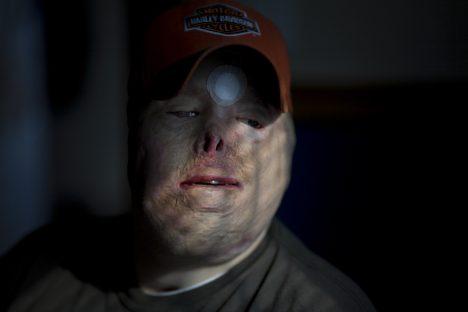 Wounded U.S. Marine Ty Ziegel