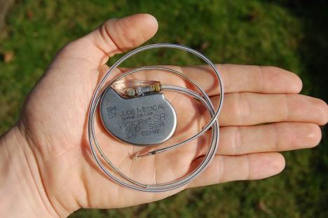 Takto vypadá kardiostimulátor dnes. Je drobný a vejde se do dlaně.