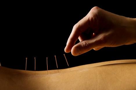 K tradiční čínské medicíně neodmyslitelně patří i akupunktura, nejstarší nalezené jehly pocházejí z dob před 7 tisíci lety.