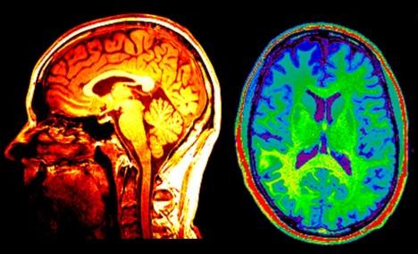 Hráči mají více šedé hmoty mozkové, především v levé části mozkové kůry. Znamená to, že dokážou rychleji a kvalitněji zpracovávat vnější podněty.