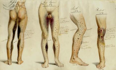 Medicínské záznamy britské Royal Navy obsahují i názorní ilustrace.