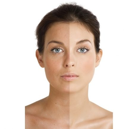 Díky pigmentu v kůži se opalujeme.