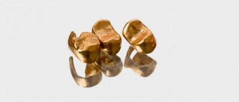 Zlaté zuby dokáže italský lékař D´Arcoli vytvořit už v 15. století.