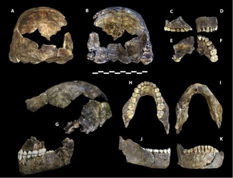 Po prozkoumání kostí se ukázalo, že pánev a trup odkazuje spíše k dávnějším předchůdcům člověka. Dolní končetiny ale již vypadají moderněji a tvar lebky a zubů je pak tvořený smícháním obou vlivů.