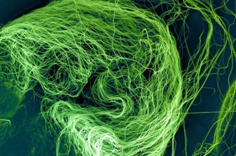 Nanovlákna vyvinutá v Liberci mohou zachraňovat zrak.