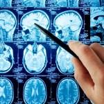Síň slávy neurologů: 6 lidí, na které by se nemělo zapomenout!