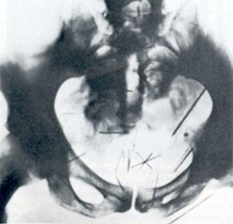 rentgen