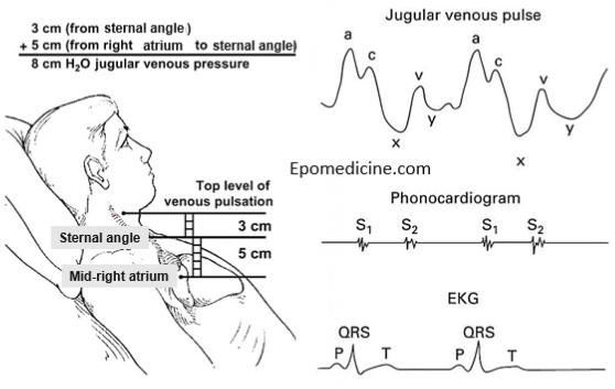 Jugular Venous Pulse and Pressure (JVP) Examination ...