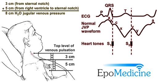 Physical Examination: Jugular Venous Pulse and Pressure ...