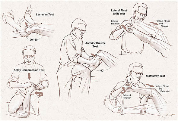 pivot joint diagram 0 10 movies tests for knee ligaments   epomedicine