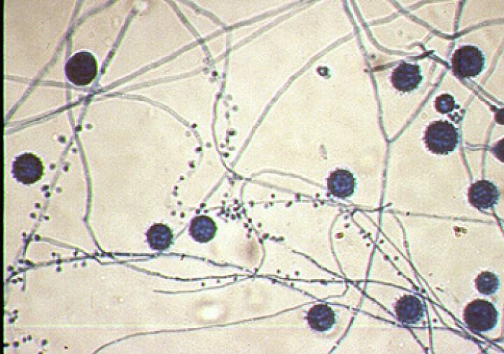 Figure 5 Dimorphic Fungi: MIG - TML & MSH MicroWeb