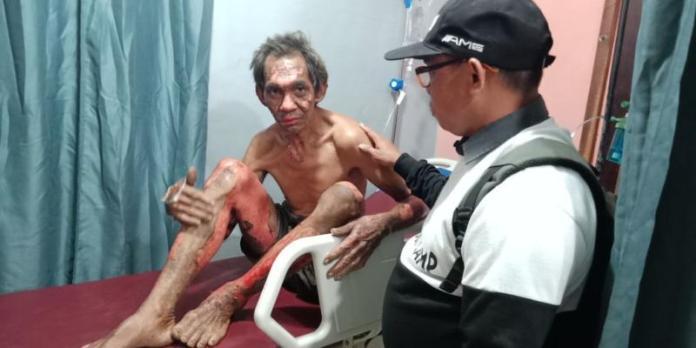 Adong, salah satu korban kebakaran lahan saat dibawa ke rumah sakit bersama dua korban lainnya ---Warga For Rakyat Kalbar