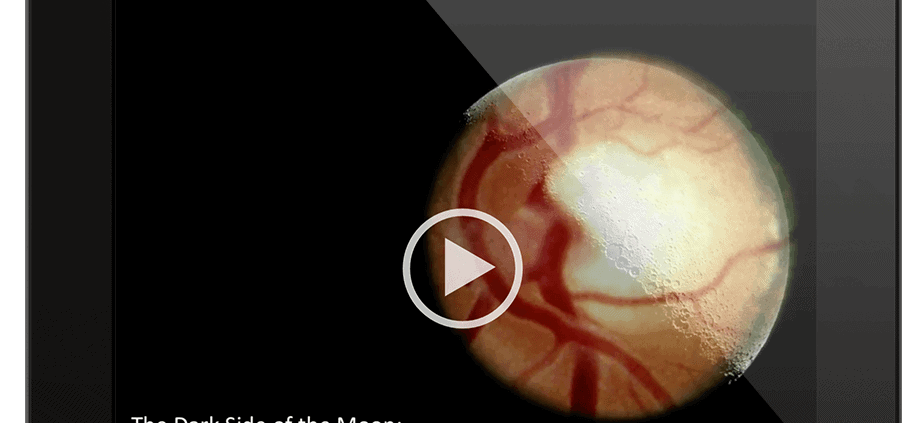 Video–Dark Side of the Moon: Intracranial Pressure in Glaucoma