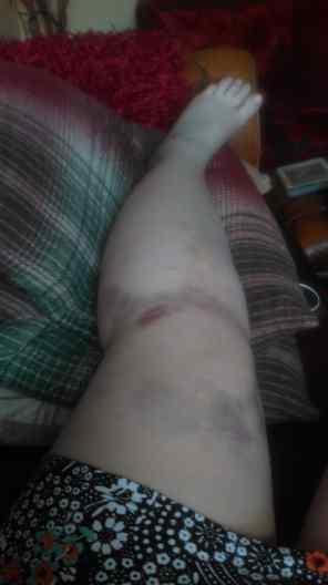 my sore knee