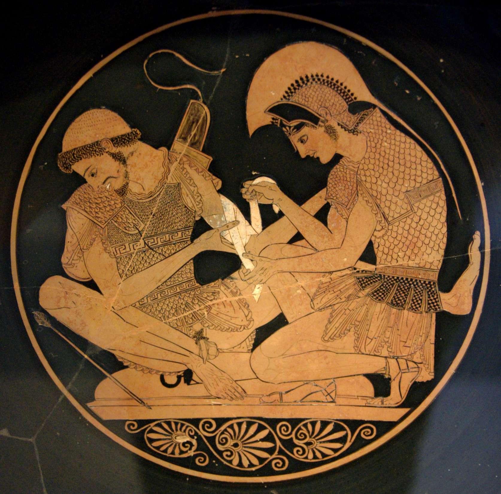 Ο Αχιλλέας επιδένει το τραύμα του Πάτροκλου (Ερυθρόμορφη Κύλιξ του 500 π.Χ., Άλτες Μουζέουμ, Βερολίνο)