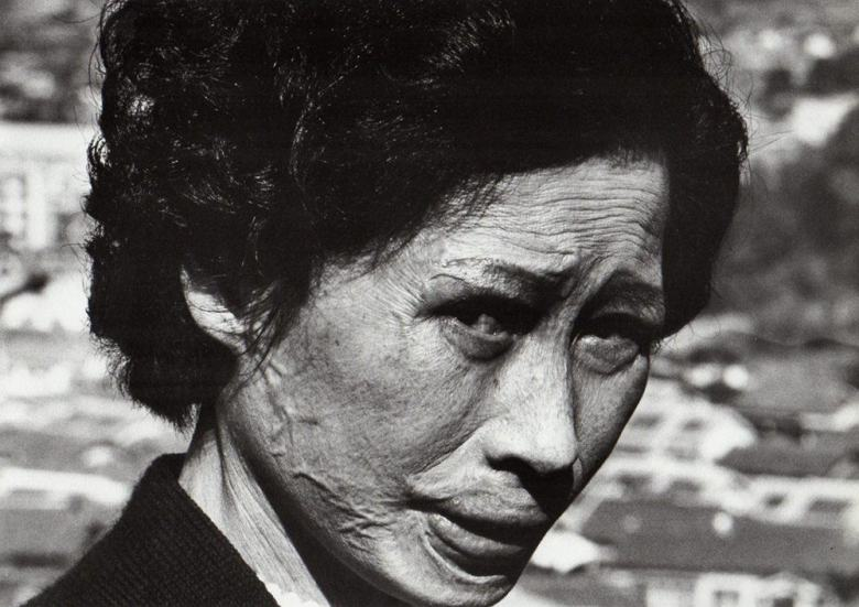 SHOMEI TOMATSU | Hibakusha Tsuyo Kataoka, Nagasaki, 1961