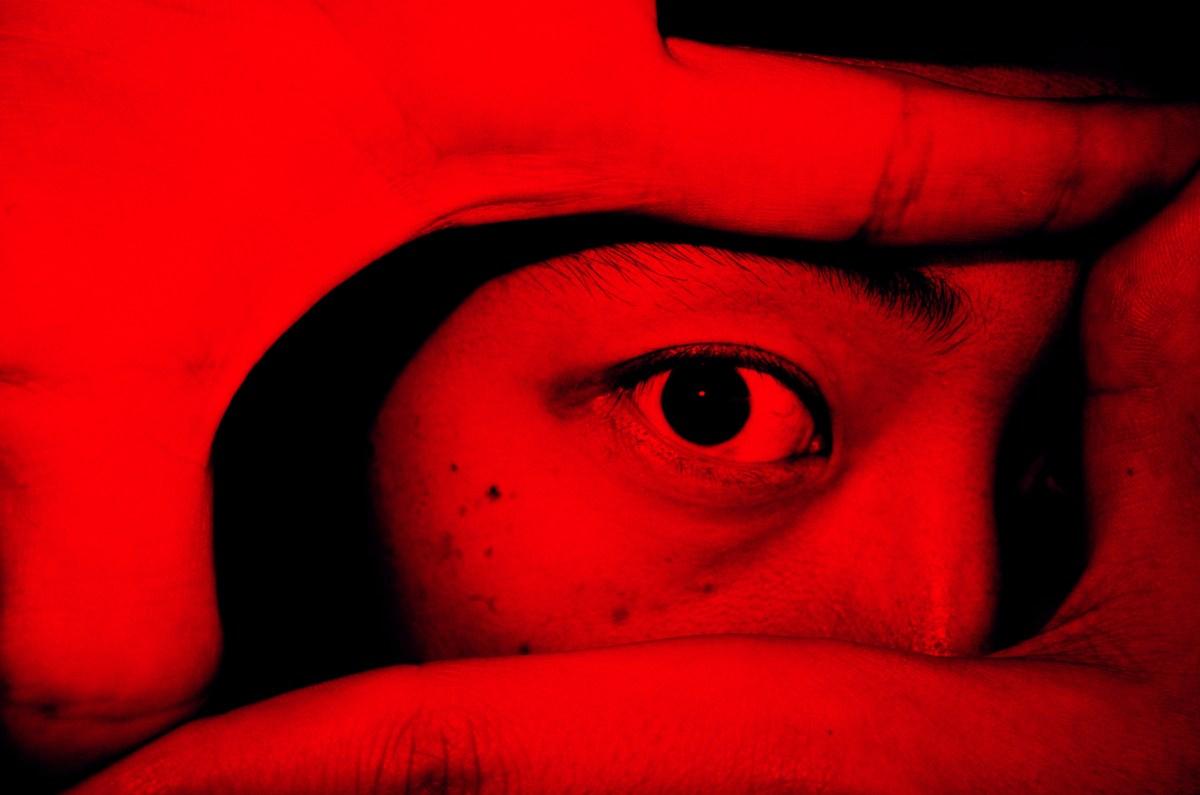 Eric kim eye red