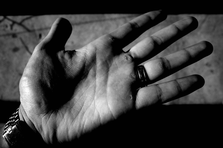 Closeup of my hand, RICOH GR III x 21mm lens adapter. Note how insanely sharp the image quality of the Ricoh GR III!