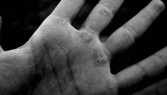 Closeup my hand and calluses