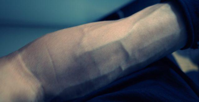 arm vein