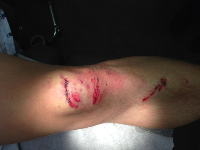 Knee after cleanup and stitching