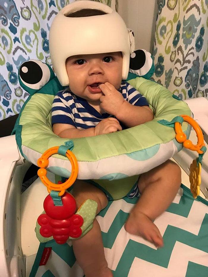 Junas Gutierrez, bebé con casco para tratar plagiocefalia