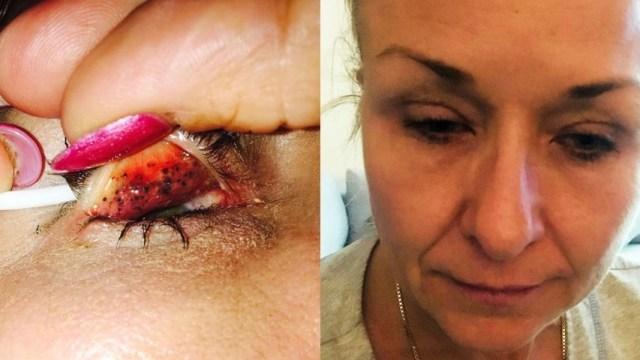 Desmaquillar Diario Pasarte Maquillaje Ojos Infección Ceguera