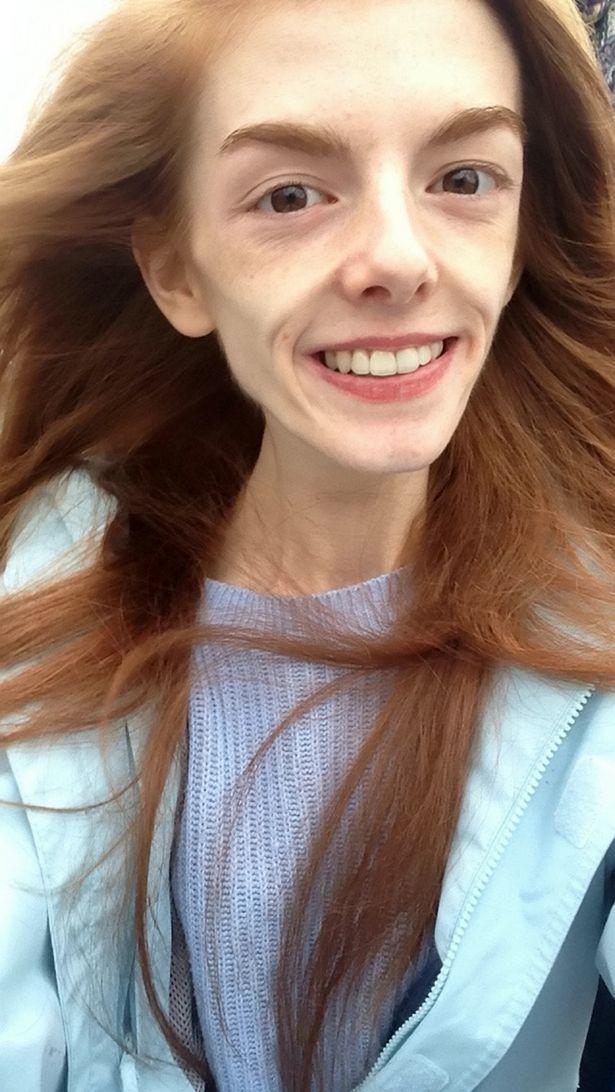 Annie Windley sobrevivió a la anorexia comiendo chocolate