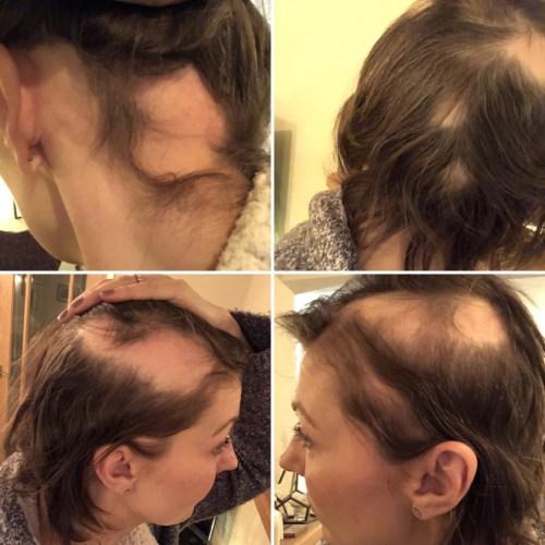 Mujer perdió el cabello por estres provocado por su boda