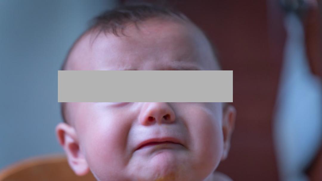 Bebé Se Infecta De Herpes Por Besos, Bebé Se Infecta De Herpes En Bautizo, Bebé Se Infecta De Herpes, Bebé Herpes Besos, Bebé Herpes Ojo, Bebé Herpes