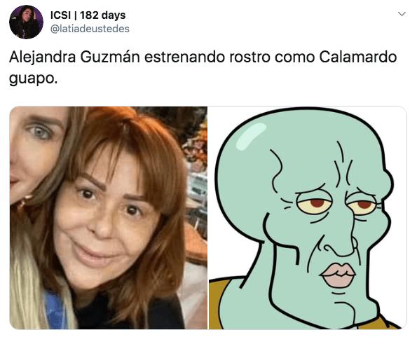 Preocupa rostro de Alejandra Guzmán tras última cirugía plástica