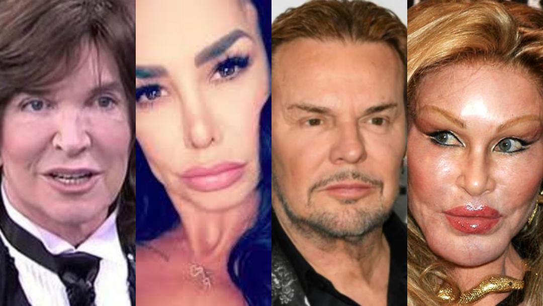 11 famosos cuyas cirugías plásticas salieron peor que ninguna otra